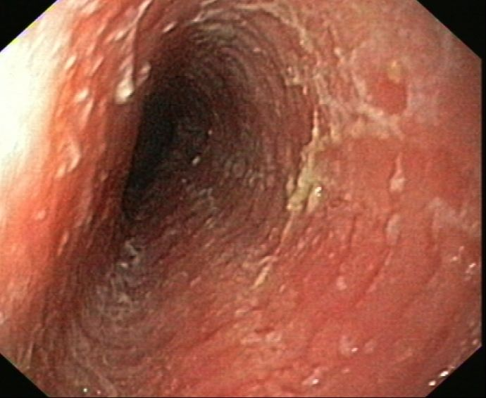 Esophagus Concentric Rings