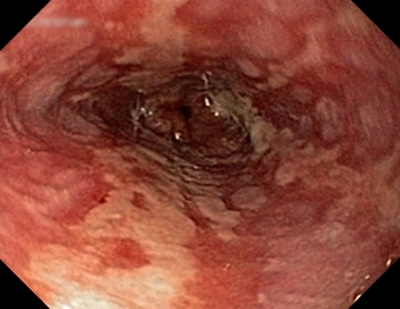 Image result for erosive esophagitis