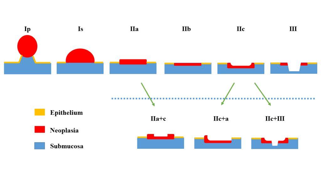Endoscopy Campus Paris Classification I Overview
